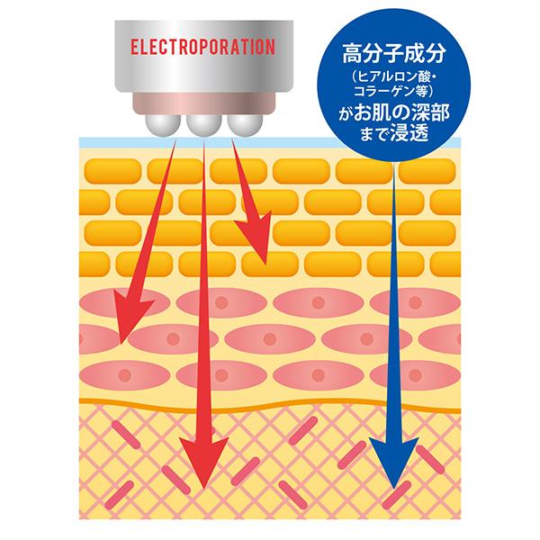 エオモイストEPRO(高濃度ヒアルロン酸)150mL