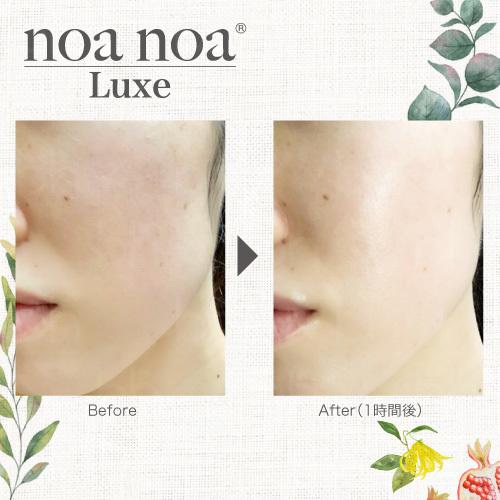 noa noa Luxe(ノア ノア リュクス) CO2 スキンミスト150g