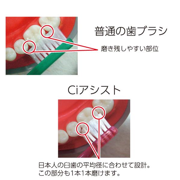 Ci アシスト / Mふつう / 4本入り【Ciメディカル 歯ブラシ】