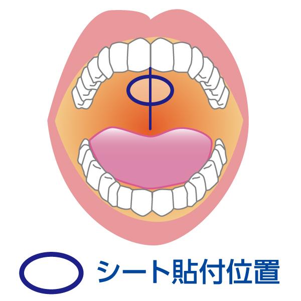 DMXシート(20枚入)【口臭・ドライマウス対策保湿シート】