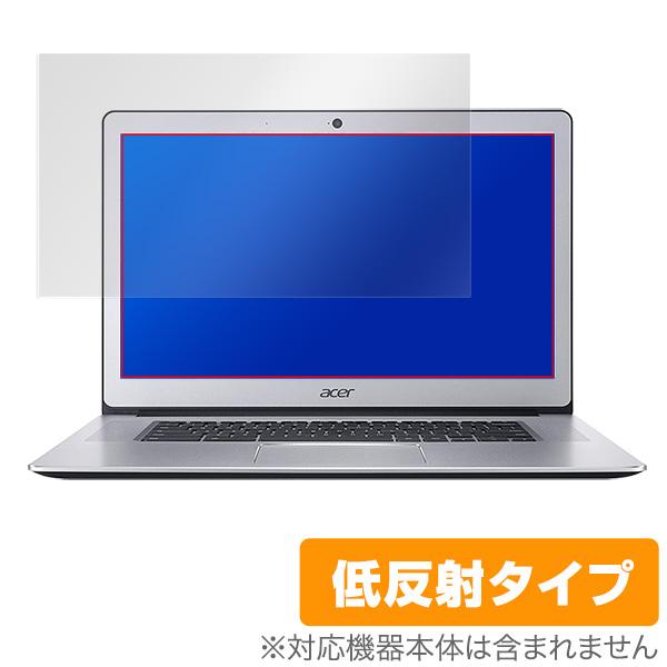 OverLay Plus for Acer Chromebook 15 CB515-1HT