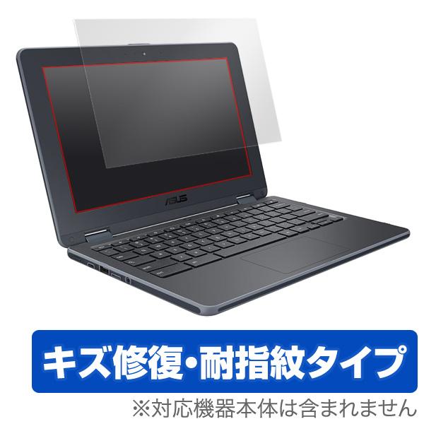 OverLay Magic for ASUS Chromebook C204 / Chromebook 12 C223NA / Chromebook Flip C214-BW0029 (ノングレアタイプ) / C213NA-N3350