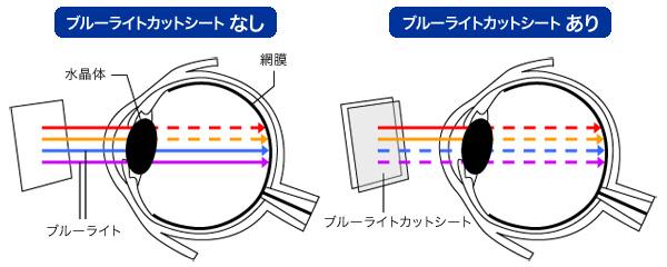 OverLay Eye Protector for みまもりケータイ4