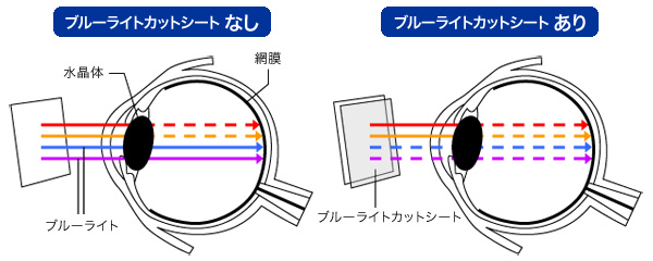 OverLay Eye Protector for AQUOS sense plus SH-M07 / Android One X4 表面用保護シート