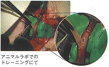 吻合用微細血管モデル(お勤め先、ご在学先を備考欄にご入力下さい)