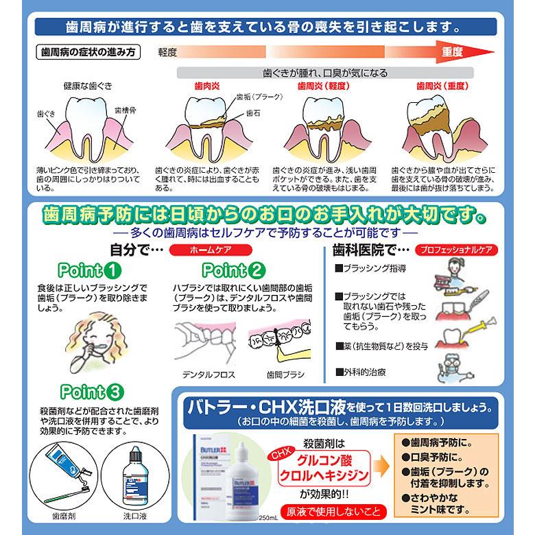 【税込1000円ポッキリセール!】(送料別)バトラーCHX洗口液 250ml1個 サンスター【メール便不可】