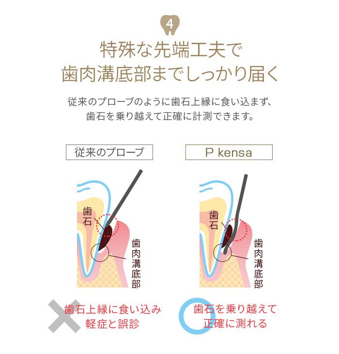 歯周ポケットプローブ Pkensa 50本入(3セット以上送料550円)
