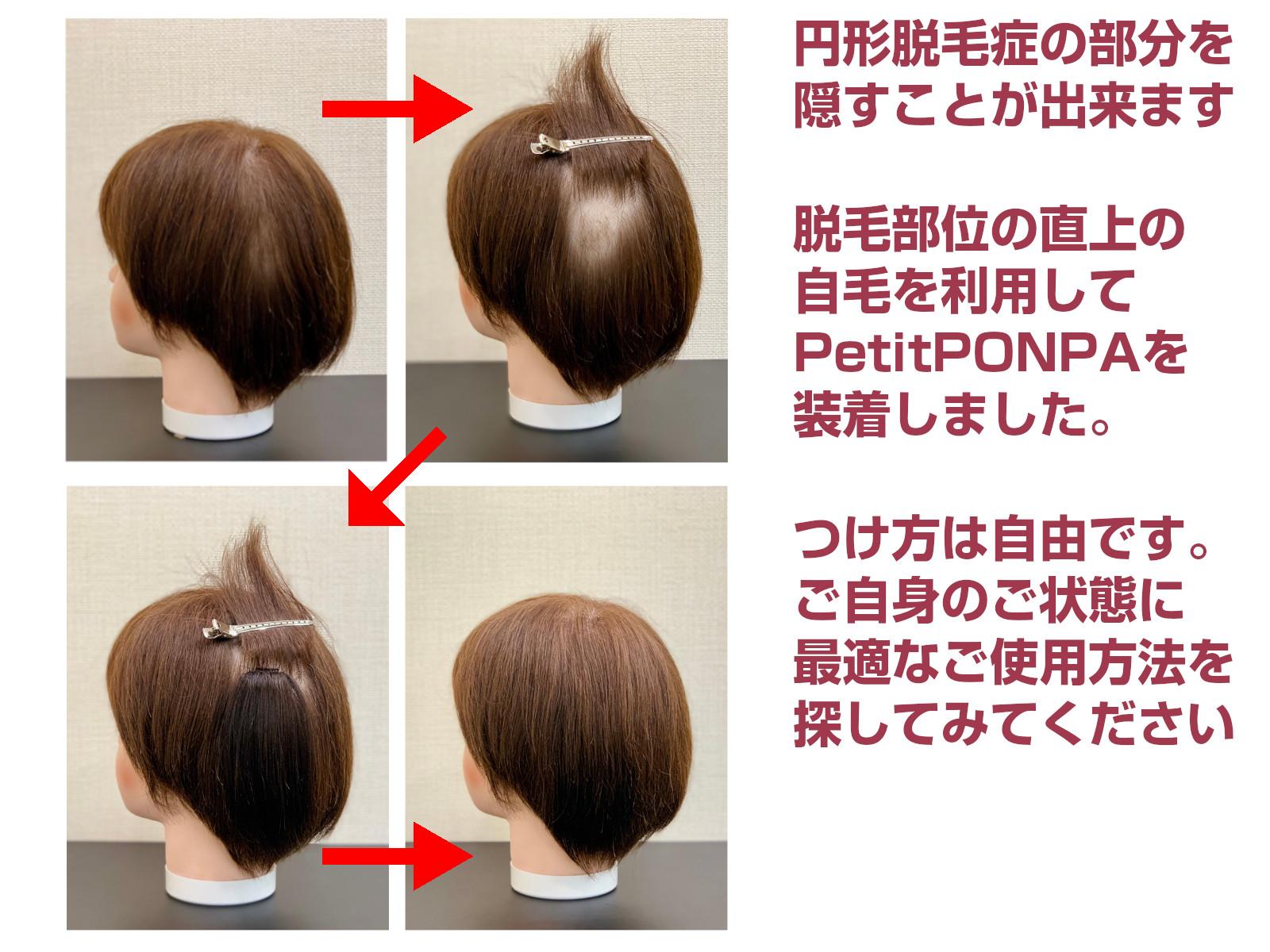 ロングヘア 極小部分ウィッグ 円形脱毛症にも Petit PON-PA LONG(プチポンパロング)