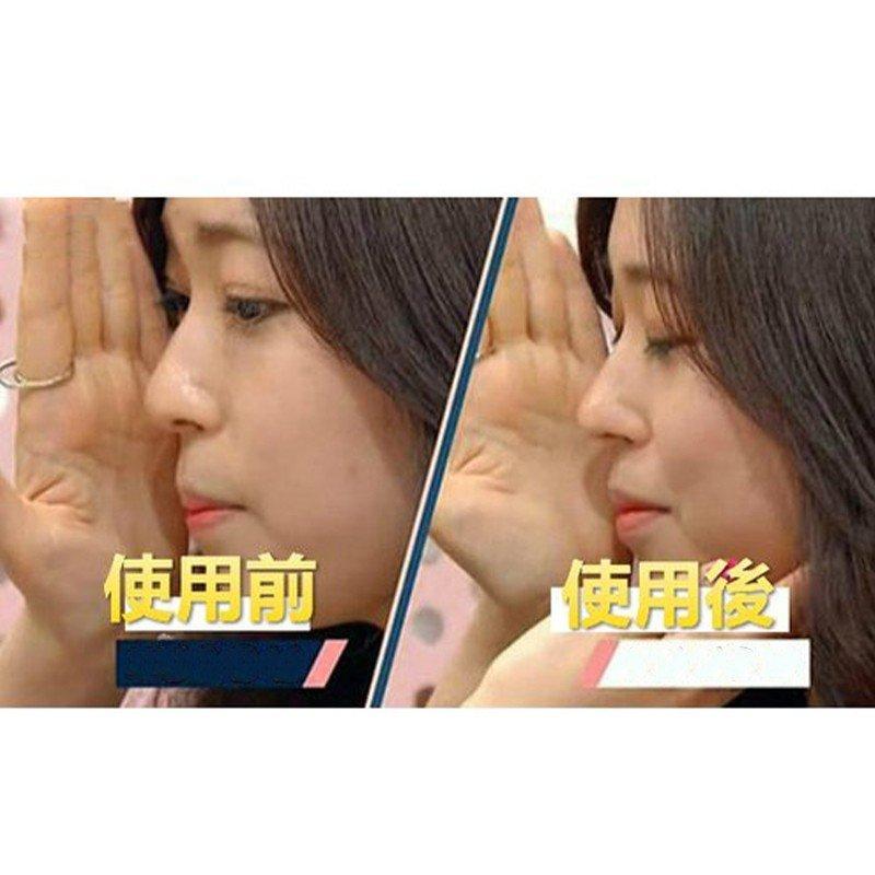 鼻プチ 効果 美鼻 プチ整形(XS/S/M)3サイズセット シリコン プレゼント プチ整形 鼻用アイプチ 美シルエット 韓国コスメ 韓国雑貨 韓国ファッション