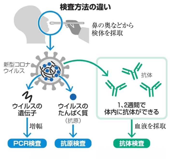 【1キット】新型コロナ抗原検査キット変異ウイルス対応 ※平日12時までの決済完了で即日出荷