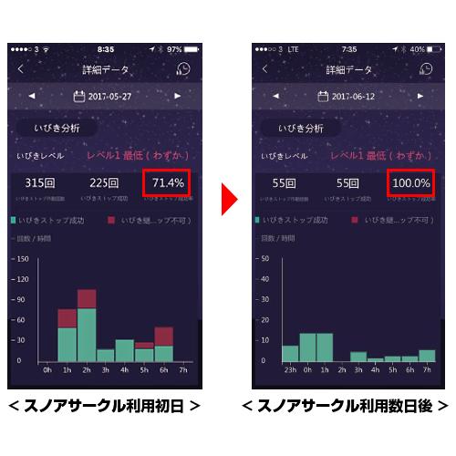 いびき防止グッズ「スノアサークル」【日本国内正規品販売】