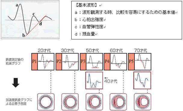 血管年齢・ストレス測定器 ボディチェッカー